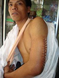 Thầy Lê Duy Bắc bị đánh gãy tay vì không đội mũ bảo hiểm. Photo courtesy of tinlanhbiengiao.net.