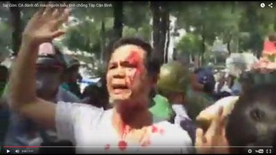 Ông Trần Bang bị CA đánh đổ máu vì tham gia biểu tình chống Tập Cận Bình. Screenshot