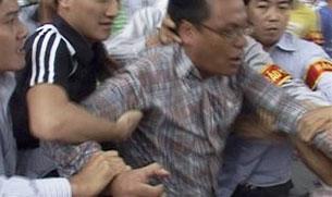 Không kém gì an ninh và công an Nhóm tự quản tự quản đeo băng đỏ cũng thô tục và mạnh tay. Photo Blog ABS