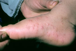 foot-and-mouth-disease-2-250.jpg