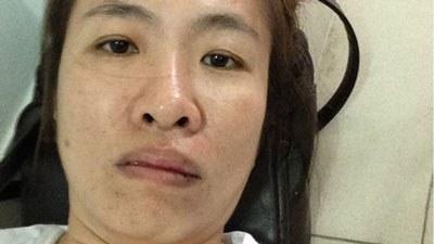 Bà Nguyễn Ngọc Như Quỳnh, tức blogger Mẹ Nấm, một trong những người tham gia phong trào tuyệt thực bị hành hung chảy máu miệng. Courtesy photo.