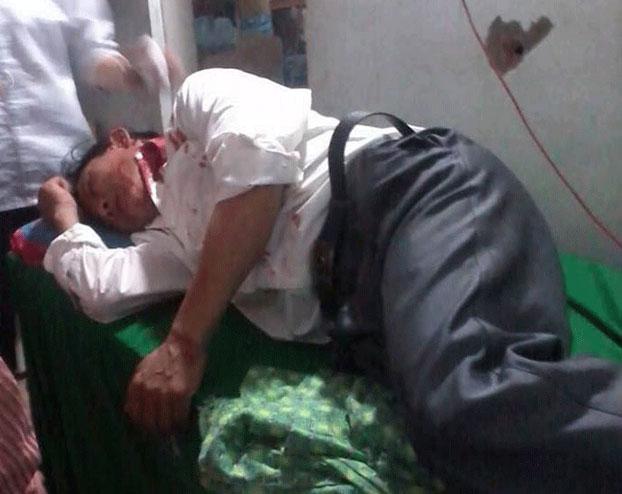 Một giáo dân Mỹ Yên bị thương được đưa đến bệnh viện Nghệ An hôm 04/09/2013. Photo courtesy of Vietnamese Redemptorists News.