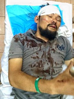 Anh Nguyễn Chí Tuyến (tức Facebooker Anh Chí) đã bị 5 tên côn đồ dùng tuýp sắt vây đánh dã man, gây thương tích nặng nề, trên đường Ngọc Thụy (quận Long Biên, Hà Nội)
