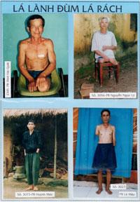 Hồ sơ thương phế binh của Hội Nạng Gỗ (1)Source Tuong An/RFA