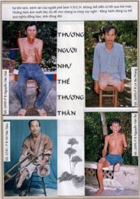 Hồ sơ thương phế binh của Hội Nạng Gỗ (2) Source Tuong An/RFA