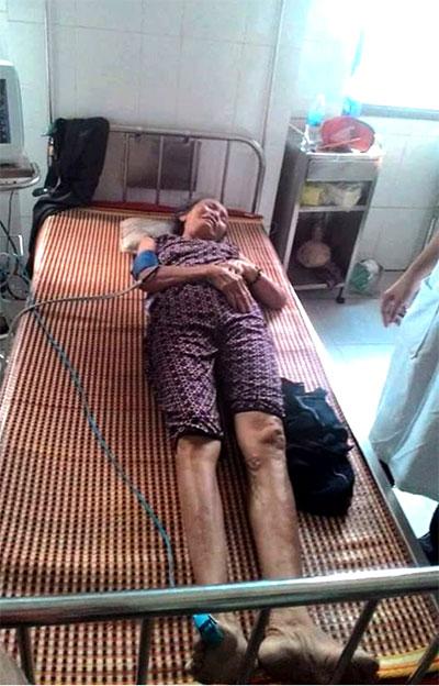 Bà cụ Nhơn – 64 tuổi, bị công an đánh gãy tay.