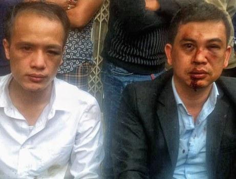 Hình ảnh luật sư Trần Thu Nam và Lê Văn Luân bị đánh ngày 3/11 được đăng tải trên Facebook cá nhân
