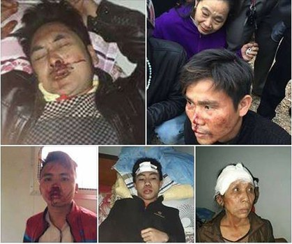Giáo dân Song Ngọc, Nghệ An đi kiện Formosa bị lực lượng chức năng đàn áp, đánh đập ngày 14/02/17.