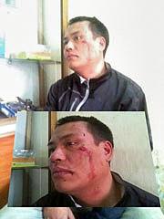 Hình ảnh anh Nguyễn Chí Đức sau khi bị chặn đánh hôm 8 tháng 4 vừa qua. (Source blog Teu)