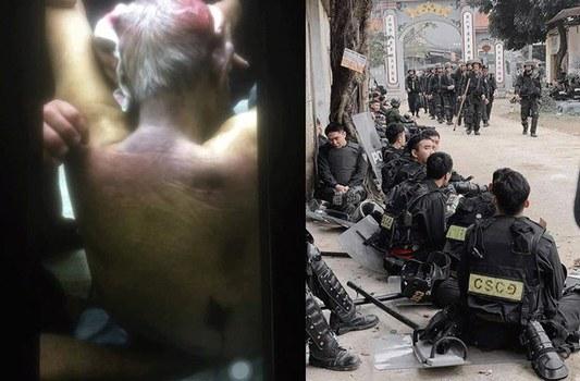 Hình minh hoạ. Phần lưng với những vết bầm tím của cụ Lê Đình Kinh (trái), và cảnh sát được huy động về Đồng Tâm hôm 9/1/2020 (phải)