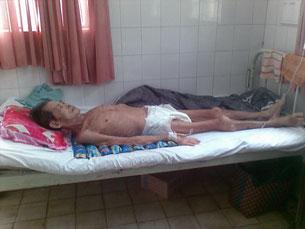 Hình ảnh cuối của ông Nguyễn Văn Trại trước lúc qua đời chỉ con da bọc sương.