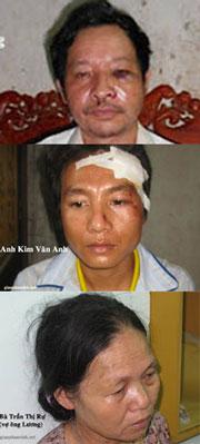 Từ trên xuống: Ông Trần Văn Lương, Bà Trần Thị Rự (vợ ông Lương), Anh Kim Văn Anh. Các giáo dân trên đã bị đánh một cách dã man thô bạo... Nguồn giaophanvinh.org