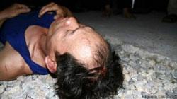 Ông Trương Văn Dũng từng bị đánh chảy máu đầu khi biểu tình chống Trung Quốc hồi tháng 6 năm 2013. Photo by Nguyễn Lân Thắng.