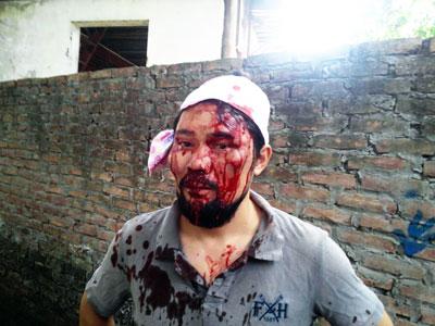 Anh Nguyễn Chí Tuyến (tức Facebooker Anh Chí) đã bị 5 tên côn đồ dùng tuýp sắt vây đánh dã man, gây thương tích nặng nề, trên đường Ngọc Thụy (quận Long Biên, Hà Nội) ngày 11/5/2015