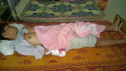 Thanh niên dân tộc Vân Kiều, nạn nhân vụ một quả đạn M79 phát nổ ngày 14/4/2014 ở Khe Sanh, Quảng Trị. RENEW PHOTO.