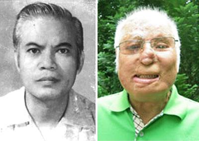 Nhà báo Trần Quang Thành là người từng làm việc chung với ông Kim Quốc Hoa và cũng là nhà báo vì chống tham nhũng đã bị tạt acit đến mang thương tật trầm trọng