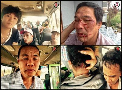 Ngày 28 tháng 8, 2015. (1)Đoàn người đón TNLT Trần Minh Nhật mãn hạn tù trở về bị hành hung, ông Lê Đình Lượng bị đánh đập gây thương tích (2), cựu TNLT Trương Minh Tam cũng bị hành hung (3), anh Chu Mạnh Sơn bị đánh đổ máu đầu (4)