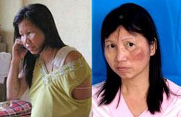 Chị Hồ thị Bích Khương đã nhiều lần bị đánh trong các lần đi khiếu kiện dân oan...RFA file