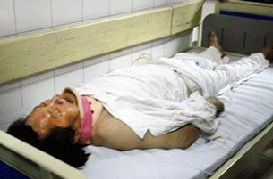 Bị trung tá công an  Nguyễn Văn Ninh đánh gẫy 2 đốt sương cột sống vùng cổ ông Trịnh Xuân Tùng đã mất sau gần bảy ngày cầm cự . Source dantri.com