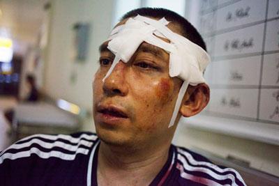 Nhà hoạt động Lã Việt Dũng bị côn đồ đánh sau khi tham gia một trận bóng của đội bóng No-U tại Hà Nội hôm 10/7/2016.