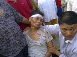 Một trong sáu nông dân ở xã Xuân Quan, huyện Văn Giang, tỉnh Hưng Yên bị 20 người mặc thường phục ập đến tấn công hôm 12-07-2012. Citizen photo.