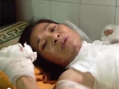 Ngày 04/07/2013, bà Đỗ Thị Thiêm, cư dân khu phố Trịnh Nguyễn - thị xã Từ Sơn, tỉnh Bắc Ninh - bất ngờ bị tạt axit bị thương nặng (Bui Thi-Minh Hang Files photos)
