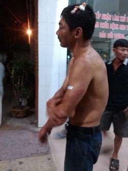 Giáo dân Mỹ Yên bị công an đánh bị thương hôm 04/09/2013. Photo courtesy of TNCG.