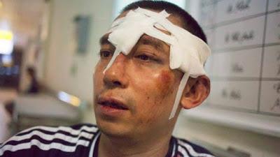 Nhà hoạt động dân chủ Lã Việt Dũng bị tấn công ngày 10 tháng bảy năm 2016. AFP photo