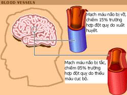Sơ đồ giải thích nguy cơ tai biến mạch máu não. Photo courtesy of tvhs.org