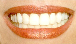 nice-teeth-305.jpg