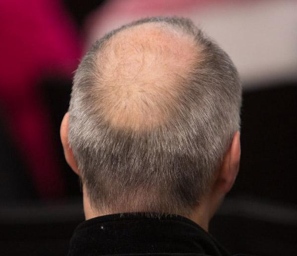 Kết quả hình ảnh cho hói đầu