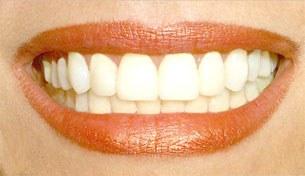 Phương pháp tẩy răng trắng