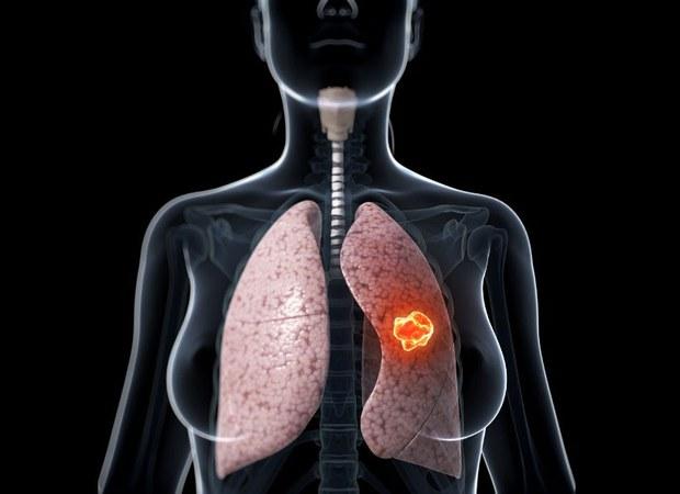 Khôi ung thư trong phổi