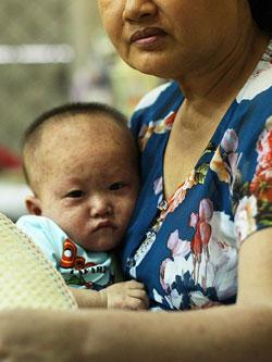 Một gia đình có con nhỏ bị bệnh sởi tại một bệnh viện nhà nước ở Hà Nội ngày 17 tháng 4 năm 2014. AFP PHOTO.