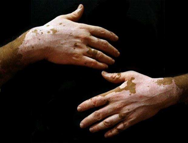 Bệnh bạch biến là một bệnh mất sắc tố ở da, lông, tóc do tế bào sắc tố mất chức năng  tạo ra sắc tố dẫn tới biểu hiện tổn thương da là mất mảng sắc tố