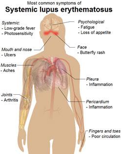 Những triệu chứng phổ biến của lupus ban đỏ hệ thống. Courtesy wikipedia.