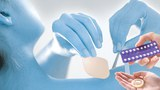 Miếng dán tránh thai được dán trực tiếp vào da vùng mông, bụng, lưng trên hoặc bắp tay nữ giới. ngoài ra còn có các loại thuốc uống trước hoặc sau và bao cao su....