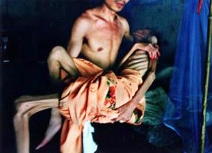 Một bệnh nhân bị Aids thời kỳ cuối
