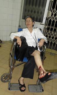 Cụ Lê Hiền Đức bị chảy máu chân trong vụ xô xát hôm 01/6/2012. Courtesy of worldpress
