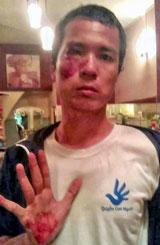 Blogger Hoàng Dũng, thành viên của phong trào Con Đường Việt Nam, cũng bị lực lượng an ninh đánh đổ máu ngay trước nhà blogger Hoàng Vi hôm 10 tháng 12, 2013. Files photos