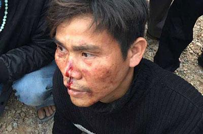 Một người tham gia đoàn khiếu kiện hôm 14/2/2017 bị công an đánh chảy máu mũi.