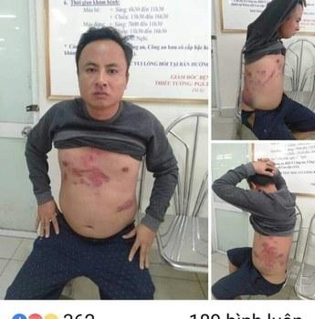 Ông Hà Văn Nam với những vết thương do bị hành hung hồi cuối tháng 1/2019