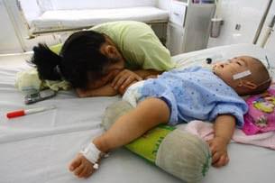 Bé trai 9 tháng tuổi đang nằm bệnh viện Bình Dương vì bệnh tay chân miệng. 2012