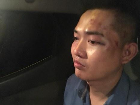 Ca sĩ Nguyễn Tín với những vết thương trên mặt do bị đánh.