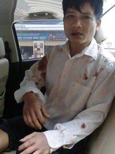Mục sư Nguyễn Trung Tôn bị bắt cóc và bị đánh đập đến thương tích hôm 27/02/2017 ở Quảng Bình.