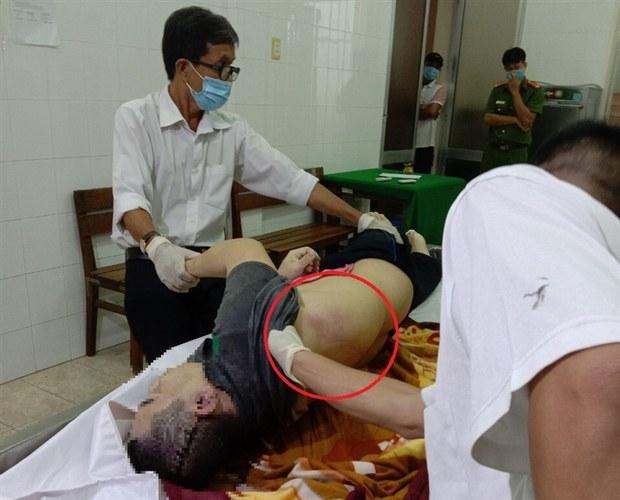 Tiền Giang: Người dân chết khi bị tạm giam, thi thể nhiều vết bầm