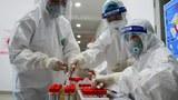 Việt Nam ghi nhận 69 ca tử vong liên quan đến COVID-19 tính đến ngày 21/6